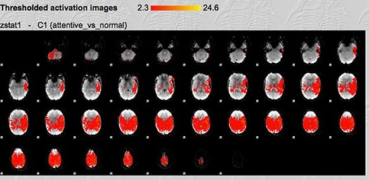 This fMRI scan reveals distinctive increases in brain activity during close reading across multiple brain regions, with strength of activation shown in red for horizontal cross sections of the brain.